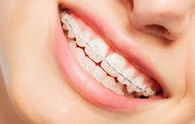 Mississauga Orthodontist