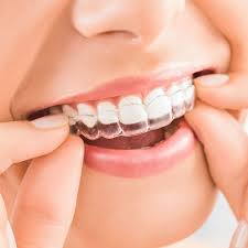 Best Orthodontist Georgetown