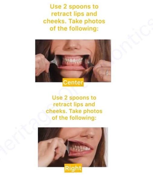 heritage orthodontics invisalign mississauga